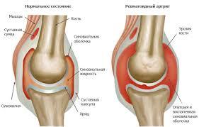 ревматоидный артрит омега 3