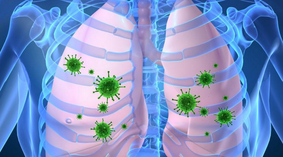 инфекции легких